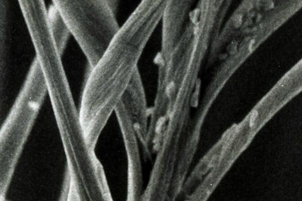 イオゾンα2処理前の顕微鏡写真