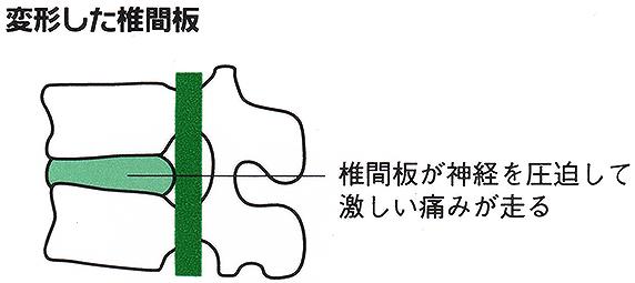 変形した椎間板